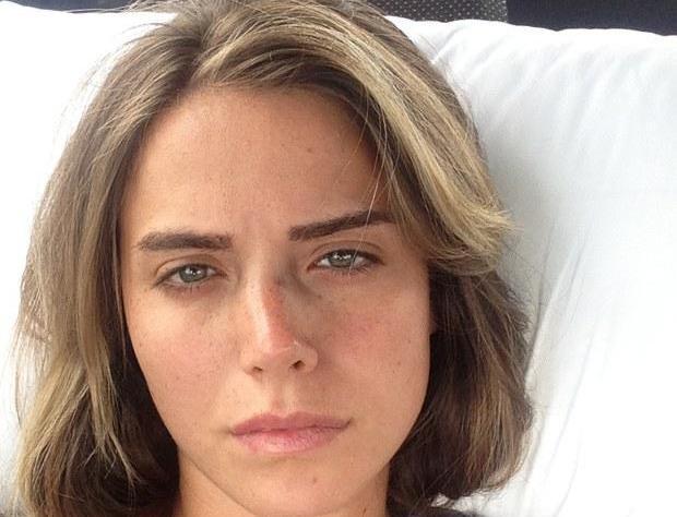Tanınmış aktrisanın burnu sındı - fotolar