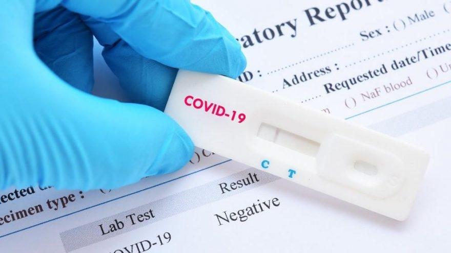 Koronavirus testinin cavabı gecikənlər nə etməlidir? - Açıqlama
