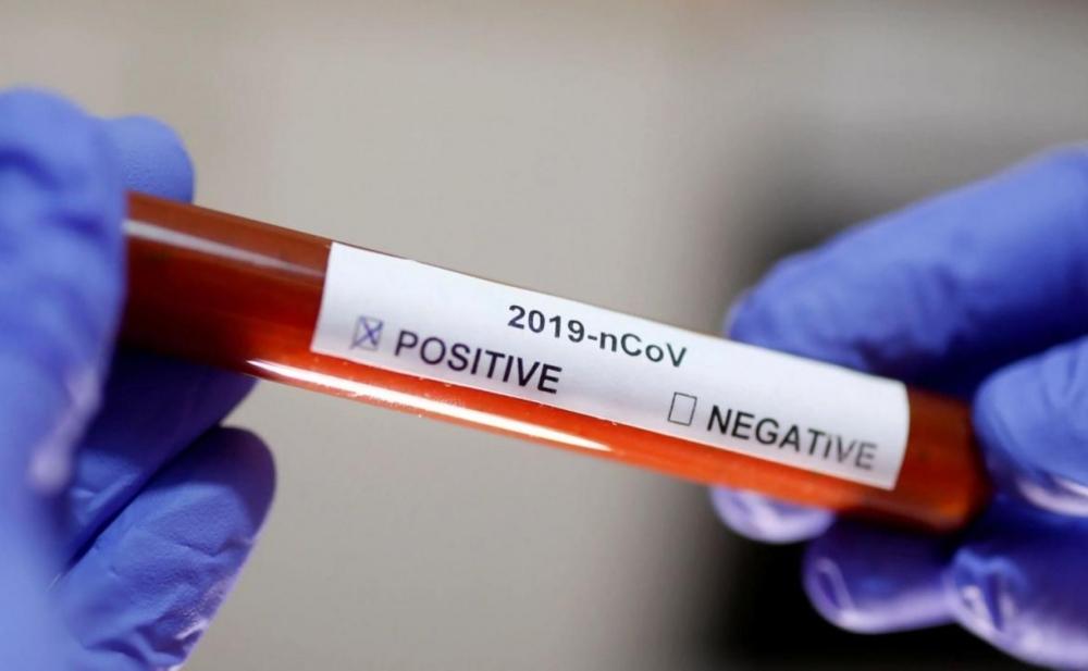 Bir gündə 28 nəfər koronavirusdan vəfat etdi